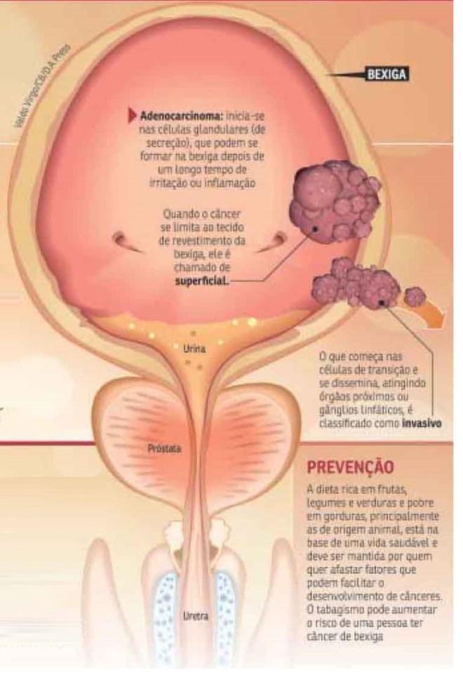 tumor da prostata maligno