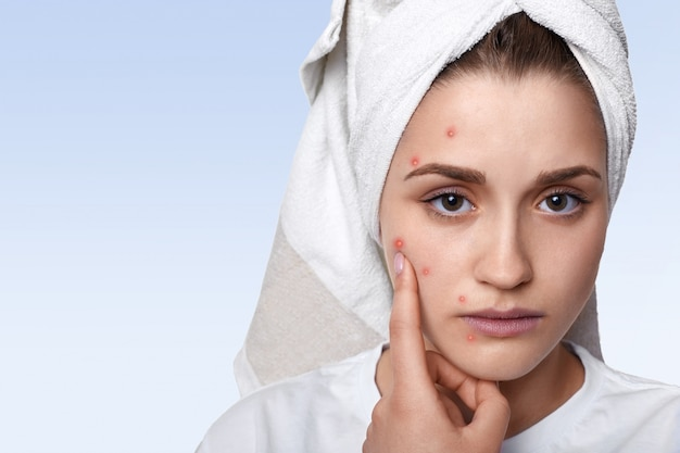 portrait young woman having problem skin pimple her cheek wearing towel her head having sad expression pointing 176532