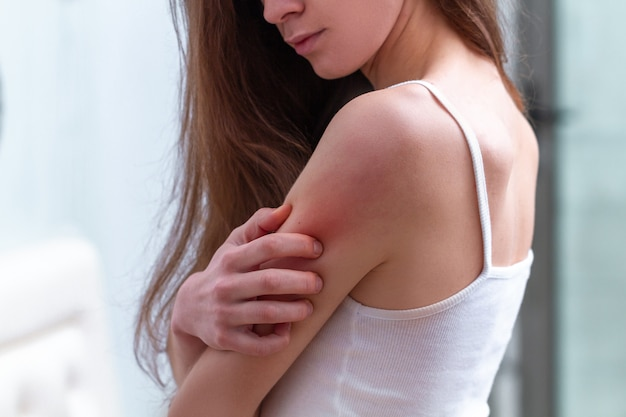Young woman suffering from itching on her skin and scratching an itchy place.