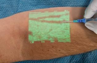 [產品設計]VeinViewer創新血管顯像技術