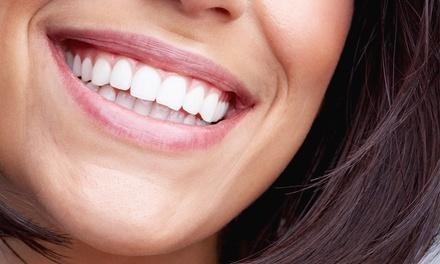 Visita odontoiatrica con pulizia e sbiancamento led (sconto fino a 75%)