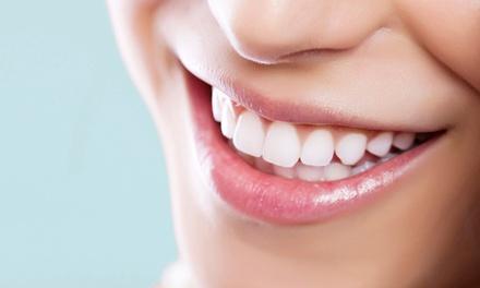 Smacchiamento air flow, otturazione e pulizia denti da Dentista a Firenze (sconto fino a 81%)