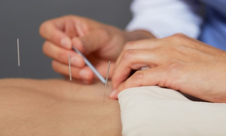 One or Two Acupuncture Sessions at HolliBalance Well-Being Center