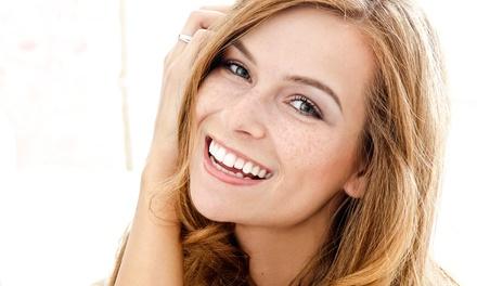Visita odontoiatrica con sbiancamento led o smacchiamento air flow allo Studio dentistico Brise (sconto fino a 81%)