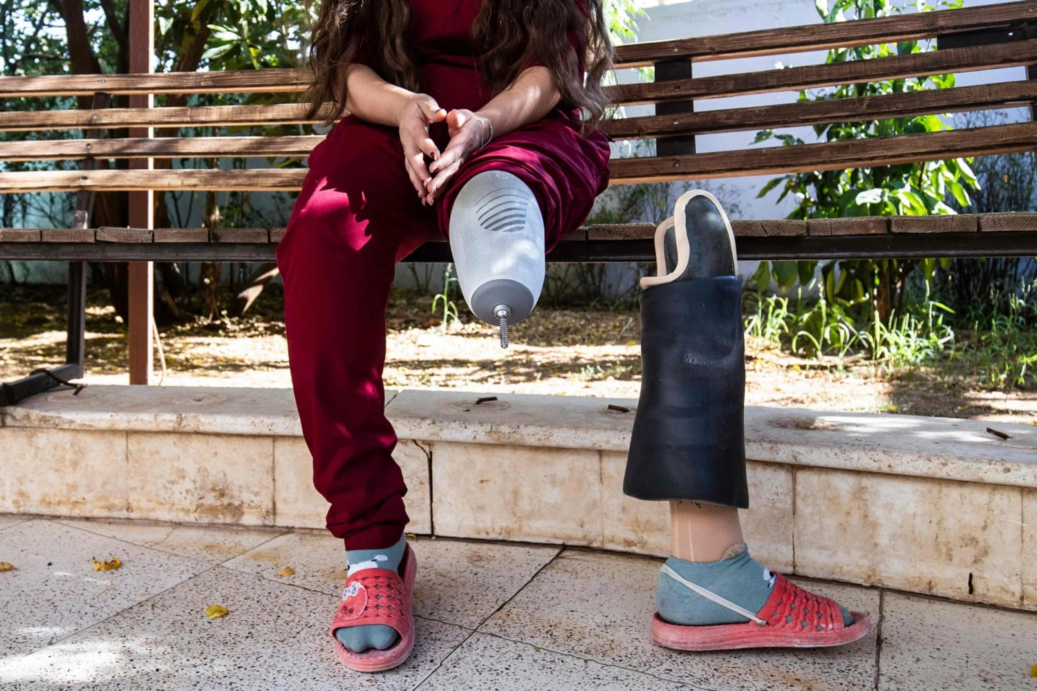 A former fighter with Syria's Kurdish Women's Protection Units (YPJ), who lost a leg while fighting extremist groups, in the Kurdish-majority city of Qamishli, September 27, 2020.