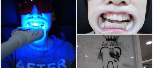 (分享)哈比第一次冷光美白牙齒~快來看體驗分享!!