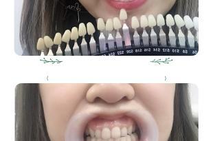 (牙齒冷光美白)板橋 DR.曾 藍光美齒專家 淨白牙齒超有感!!