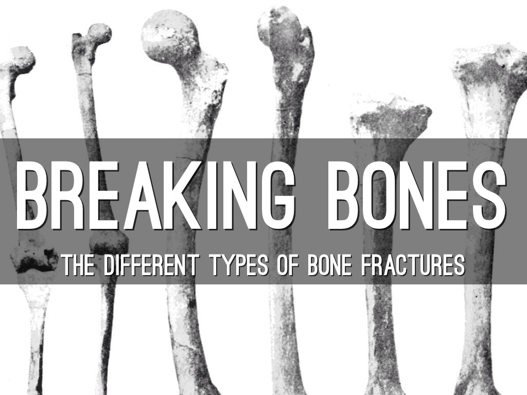 Breaking Bones By Keele Halbert