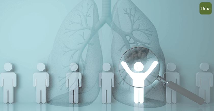 肺癌7大高風險族群