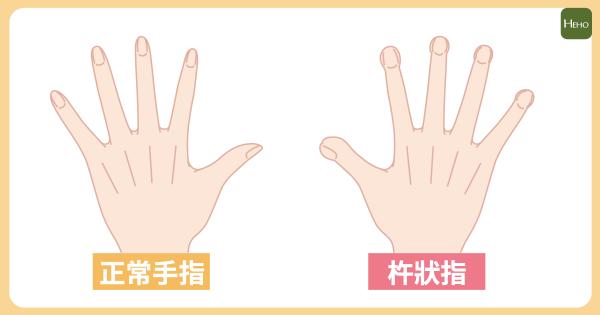 「杵狀指」可能是肺癌前兆!癌細胞刺激骨頭增生導致疼痛 | Heho健康
