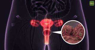 子宮頸癌02-01
