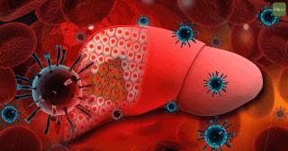 肝炎_肝癌