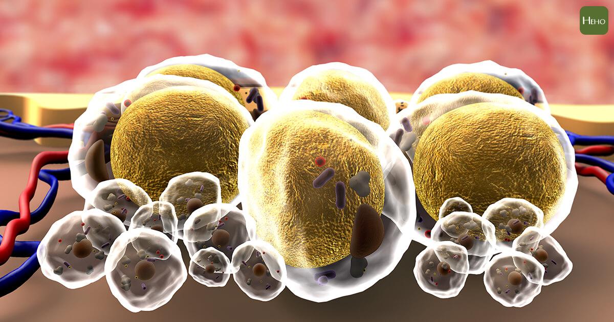 你的脂肪在幫癌細胞「造橋鋪路」