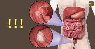 大腸癌02-01