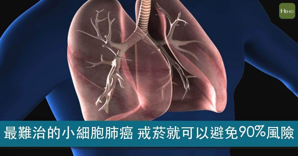 小細胞肺癌