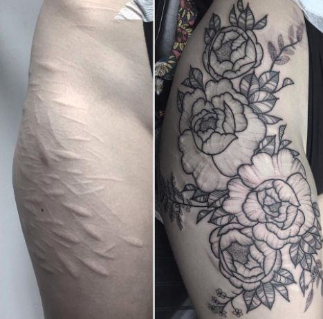 Tattoo Artist Covers Woman S Self Harm Scars With