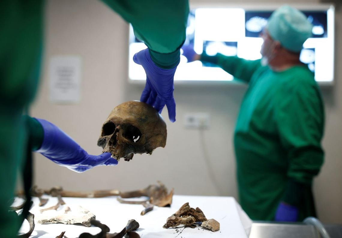 Despite having a near-intact skeleton, identification of the remains is proving difficult without an ID tag