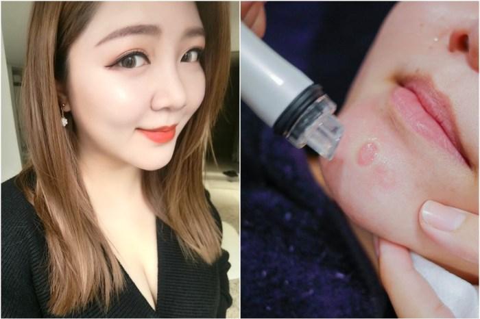 在台灣也做得到韓國最夯的皮膚管理!皮膚管理是什麼?有無恢復期?@麗波永康國際診所
