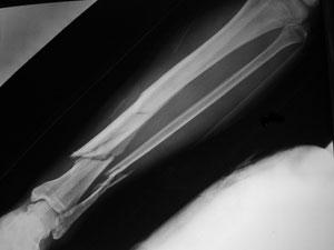 Грижи за болния при счупване на кост