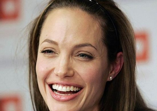 Celebrities With Big Foreheads 20 Pics