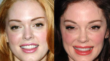 Celebrity Plastic Surgery Can Make You Young and Beautiful