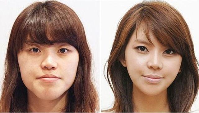 Radical Plastic Surgery