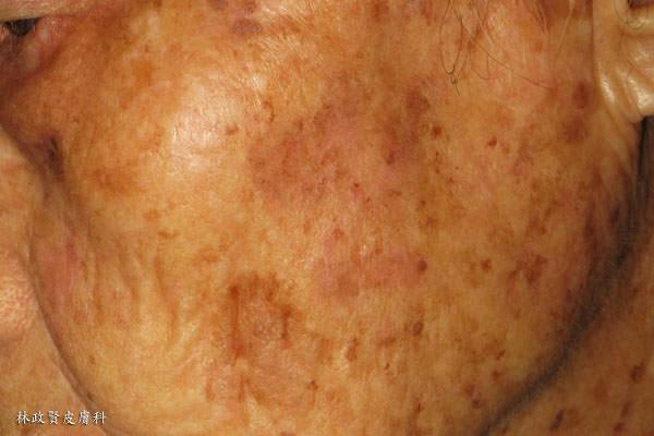 日光性角化癥 常被誤為濕疹 - 高雄皮膚專科林政賢醫師