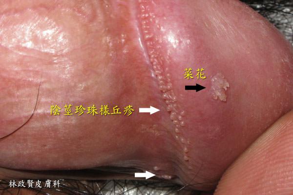 非關性病:陰莖珍珠樣丘疹 - 高雄皮膚專科林政賢醫師