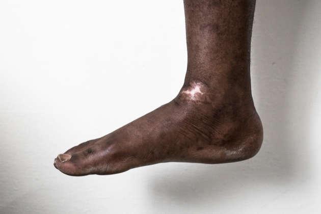Lors de sa séquestration en Libye, cet homme a été frappé sur la plante des pieds avec un gourdin de bois.