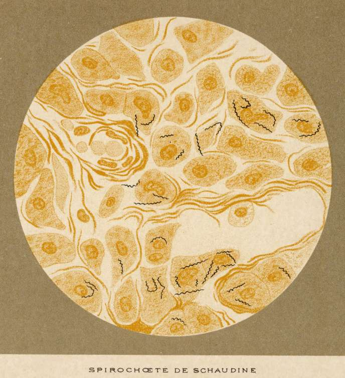 Spirochaete of syphilis, identified by Schaudinn and Hoffmann, 1905