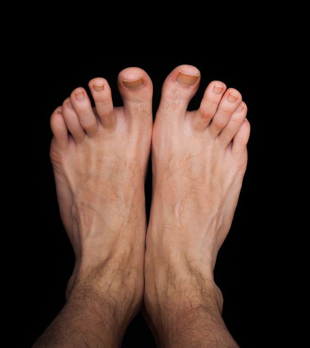 Get Rid Fungus Between Toes
