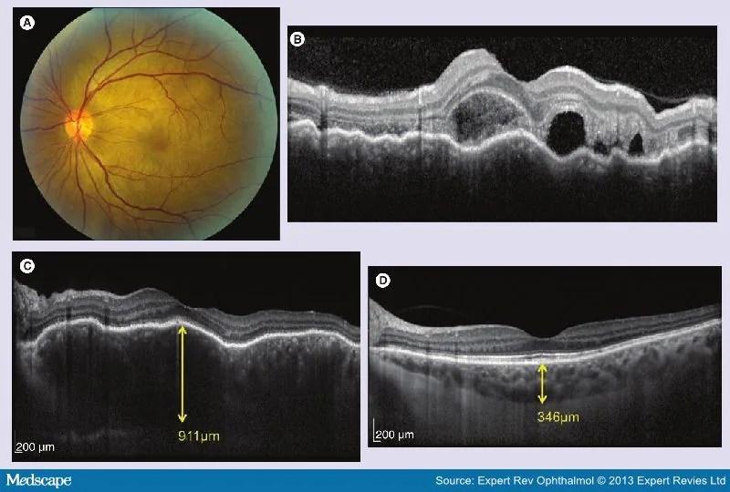 OCT And Fundus Autofluorescence Imaging In Uveitis