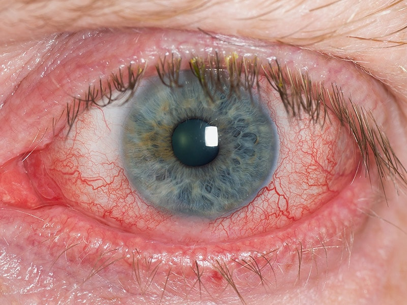 Refractory Dry Eye Linked With Neuropathic Or Systemic Pain