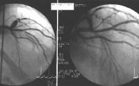 Cardiac catheterization and coronary angiography i