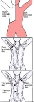Lymph drainage flow; lymphatic duct anatomy.
