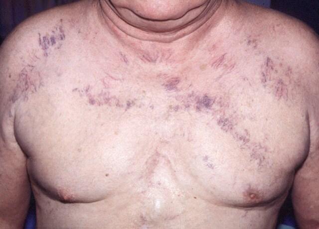 https://i2.wp.com/img.medscape.com/pi/emed/ckb/dermatology/1048885-1094030-708.jpg