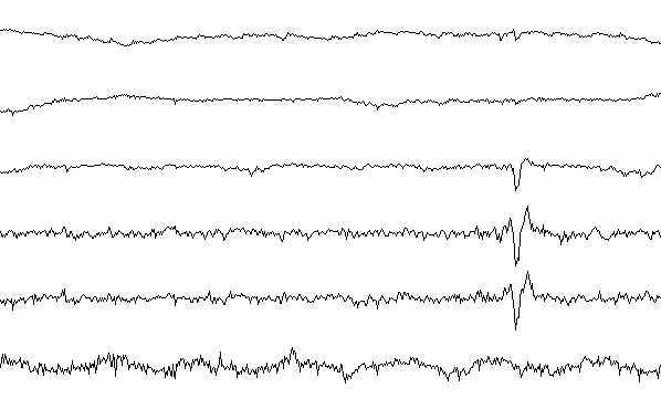 Sleep stage II EEG sample.