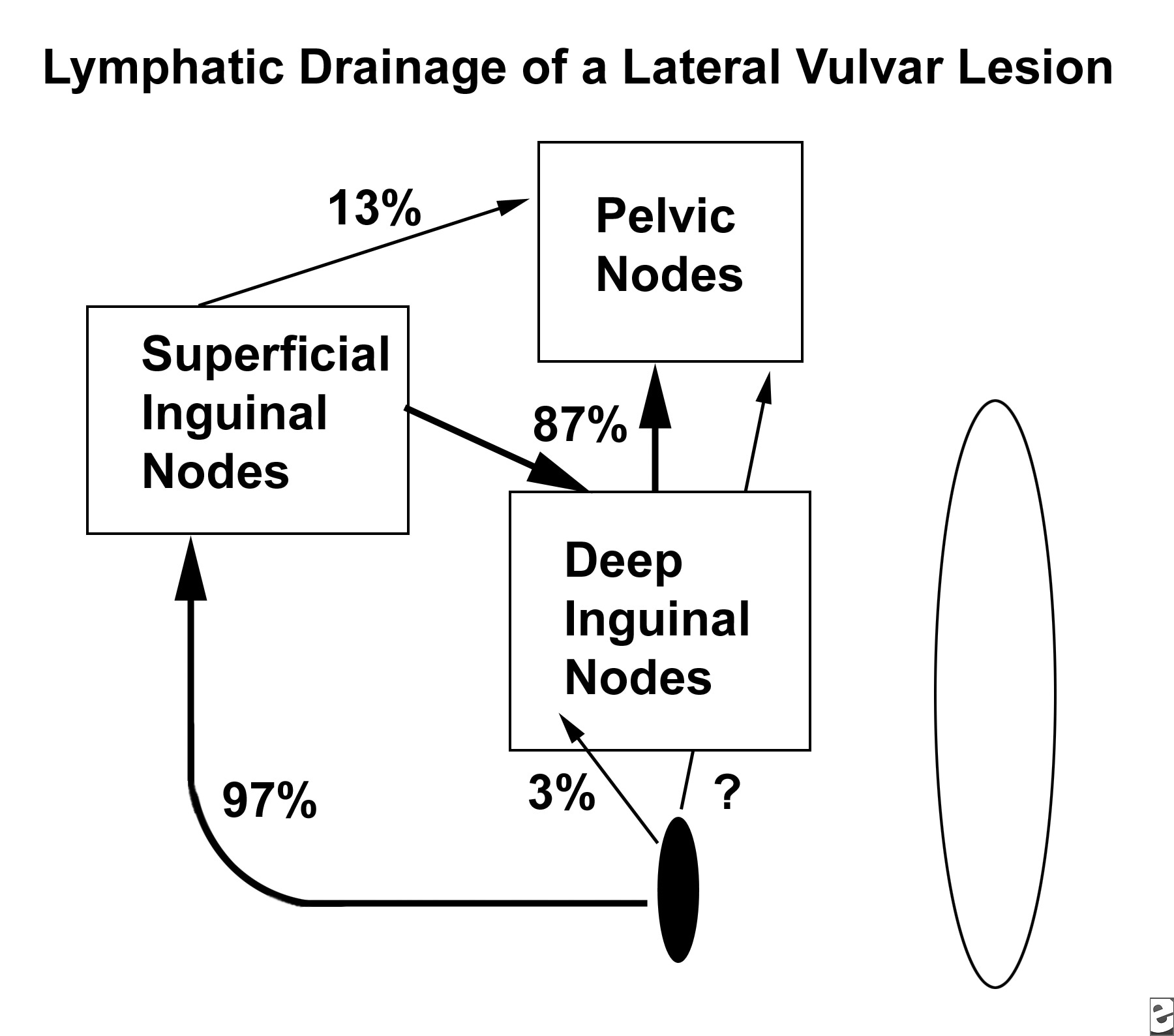 Inguinal Hernium In Woman Diagram