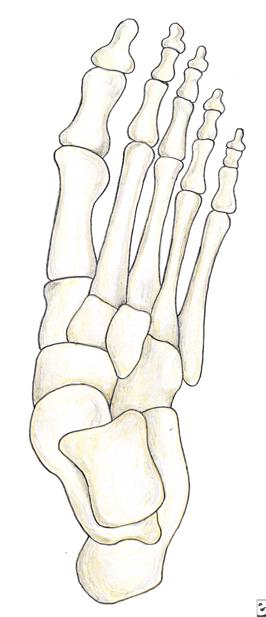 Preoperative anteroposterior view of foot prior t...