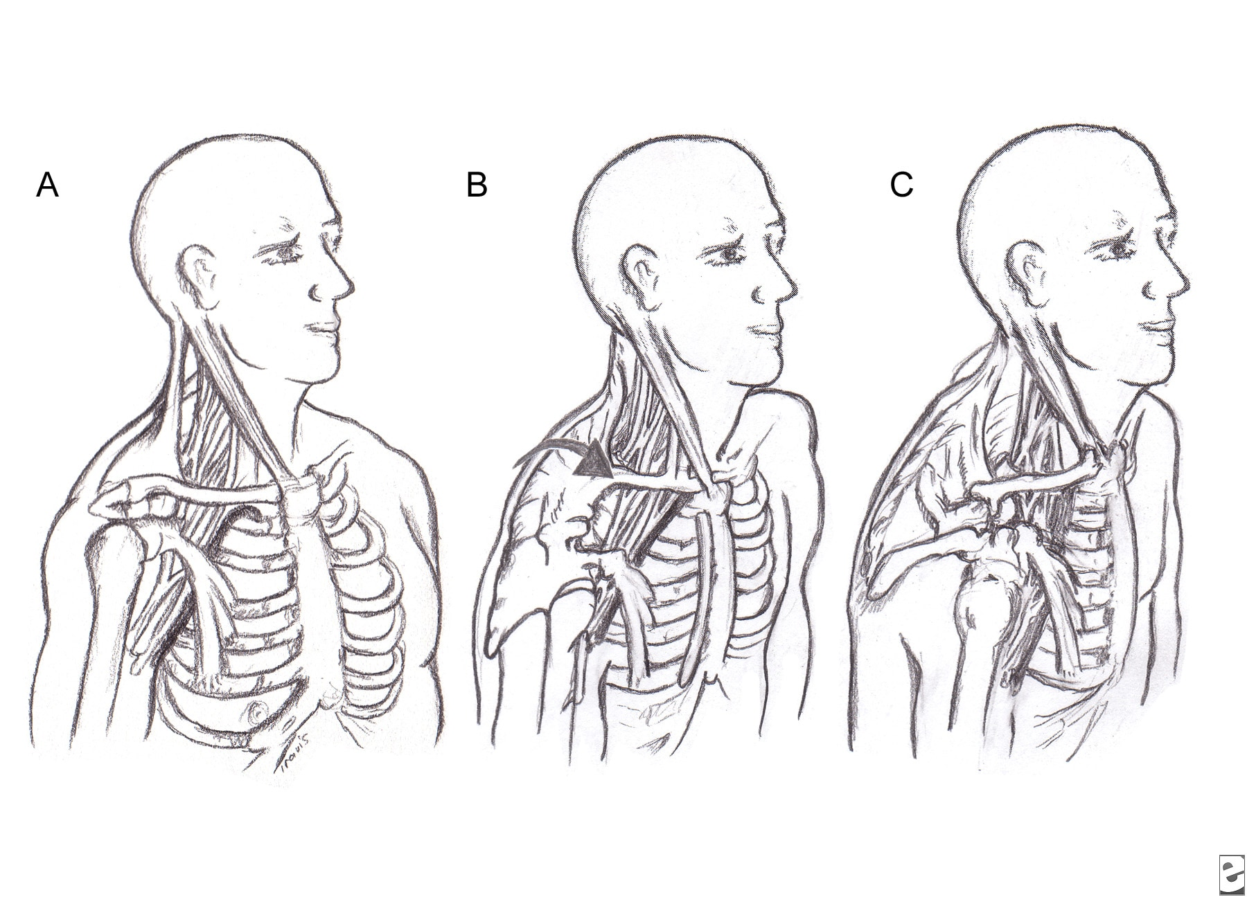 Cubital Lymph Nodes