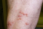 Common Rashes