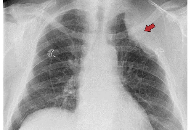 Vascular Markings Pulmonary What Are