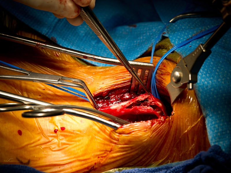 Stenting Surgery Similar In Asymptomatic Carotid Stenosis