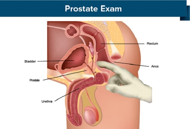 Image result for Testing for prostate cancer?
