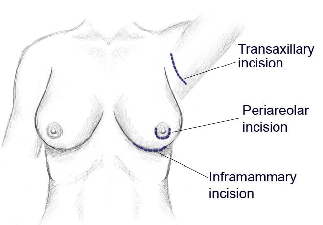 Breast augmentation surgery incisions