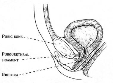 The pubourethral ligaments suspend the female uret