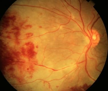 Image result for slit lamp CMV retinitis