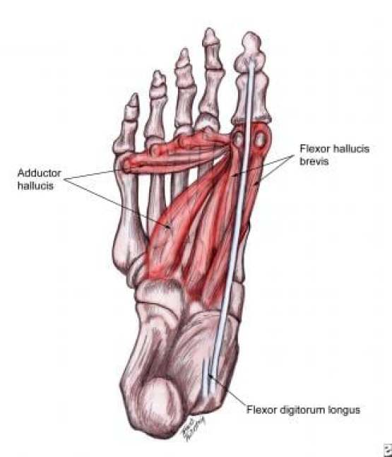 Tailor's Bunion, Tailor's Bunion; Causes, Symptoms, Diagnosis, Treatment,