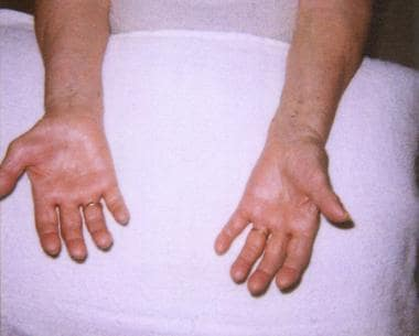 The hands of an 80-year-old woman with a several-y