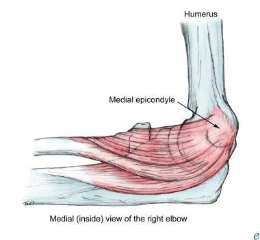 Physical Medicine and Rehabilitation for Epicondylitis ...
